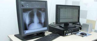 Туберкулезом называют хроническое инфекционное